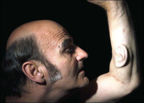Oreja implantada de Sterlac