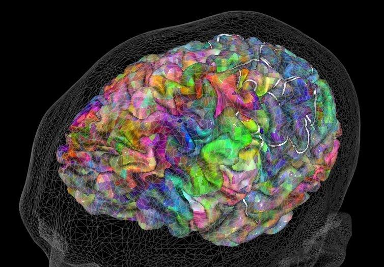 cerebro voxeles
